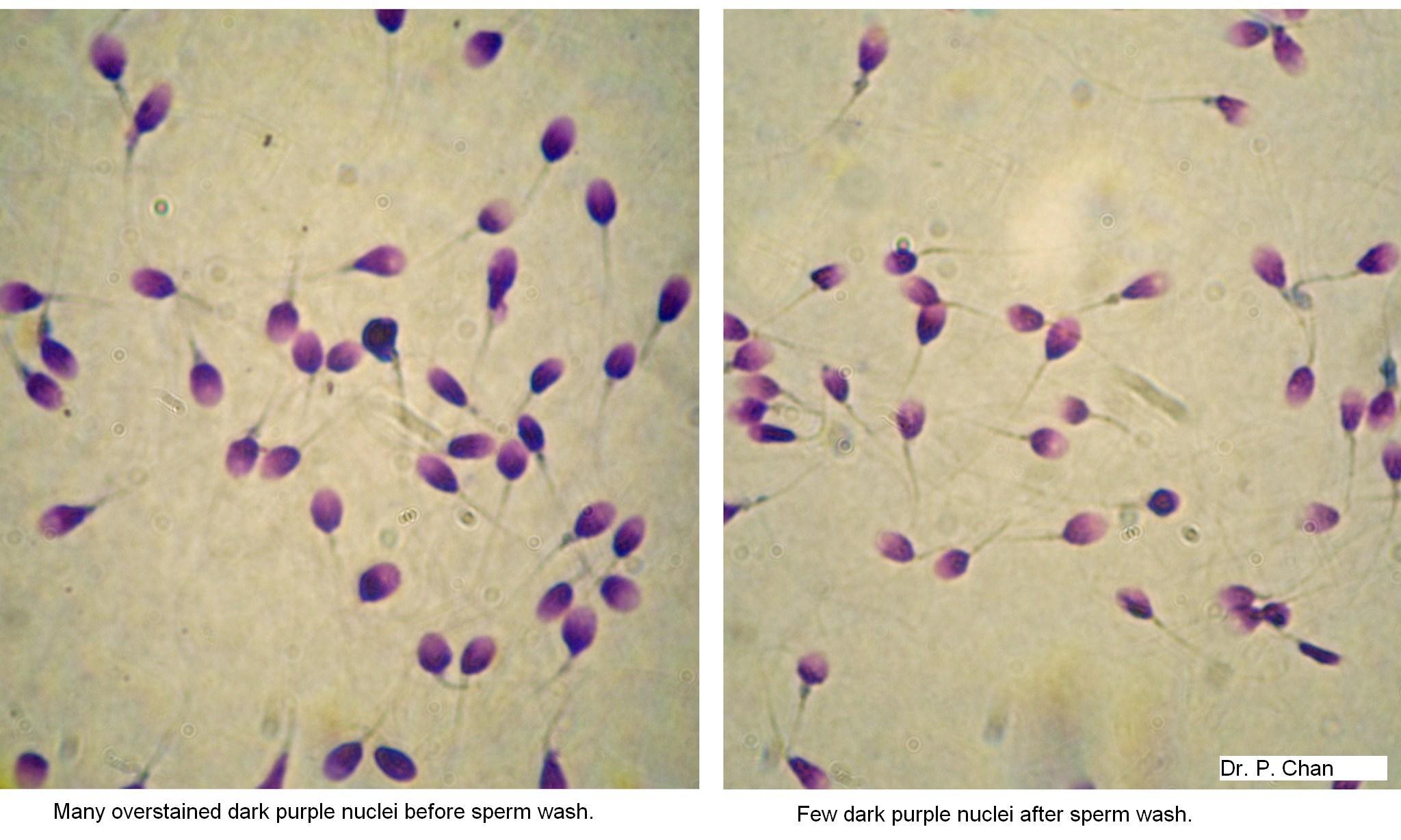 Fertility research image: sperm integrity