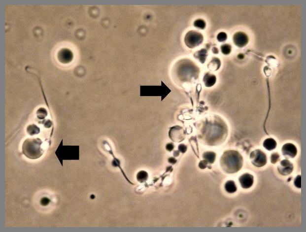 Andrology Lab at LLU Fertility