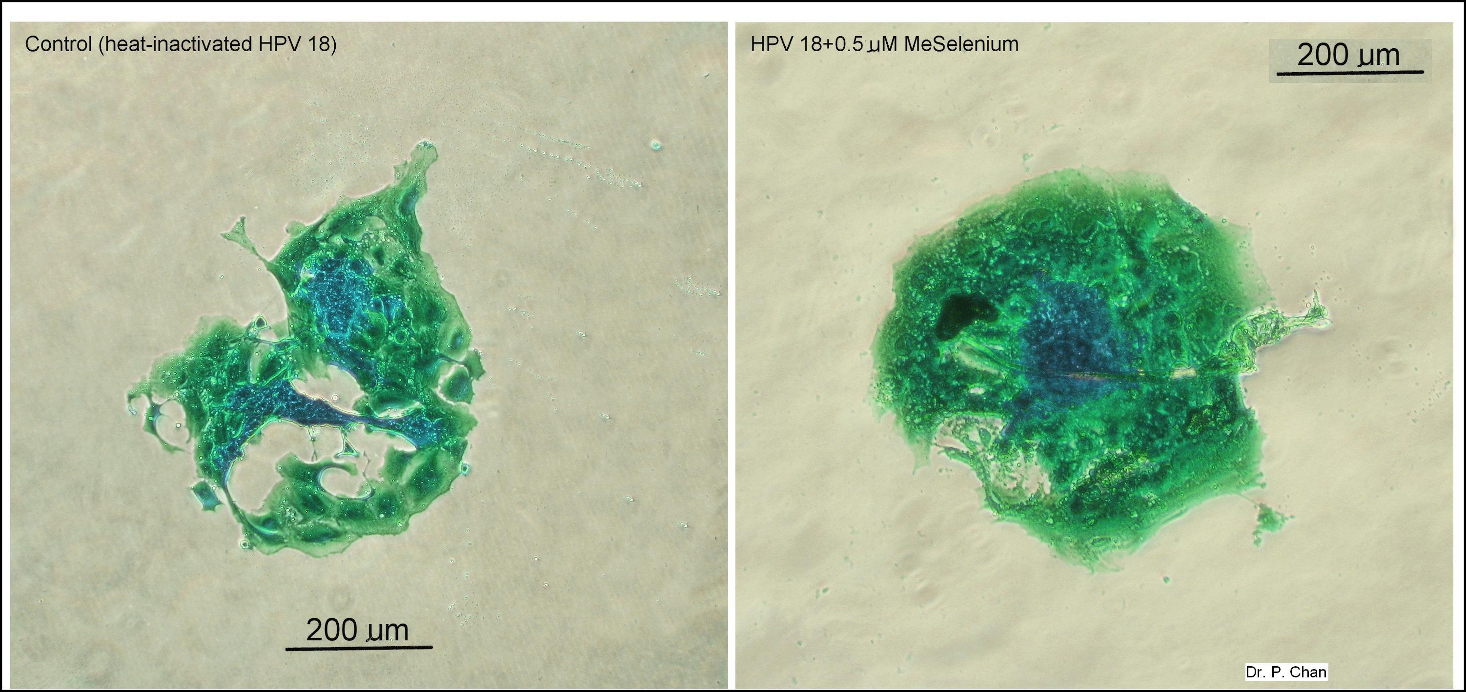 Selenium fertility research image