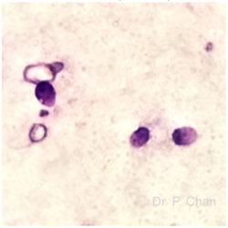 Sperm morphology | LLU Center for Fertility & IVF | Acaudate sperm