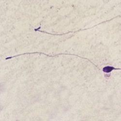 Sperm morphology | LLU Center for Fertility & IVF | Headless sperm