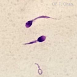 Sperm morphology | LLU Center for Fertility | stump tail sperm