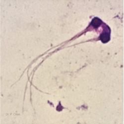 Sperm morphology | LLU Center for Fertility & IVF | Multi head sperm