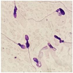 Sperm morphology | LLU Center for Fertility & IVF | Tapered head sperm