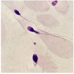 Sperm morphology | LLU Center for Fertility & IVF | thick neck sperm