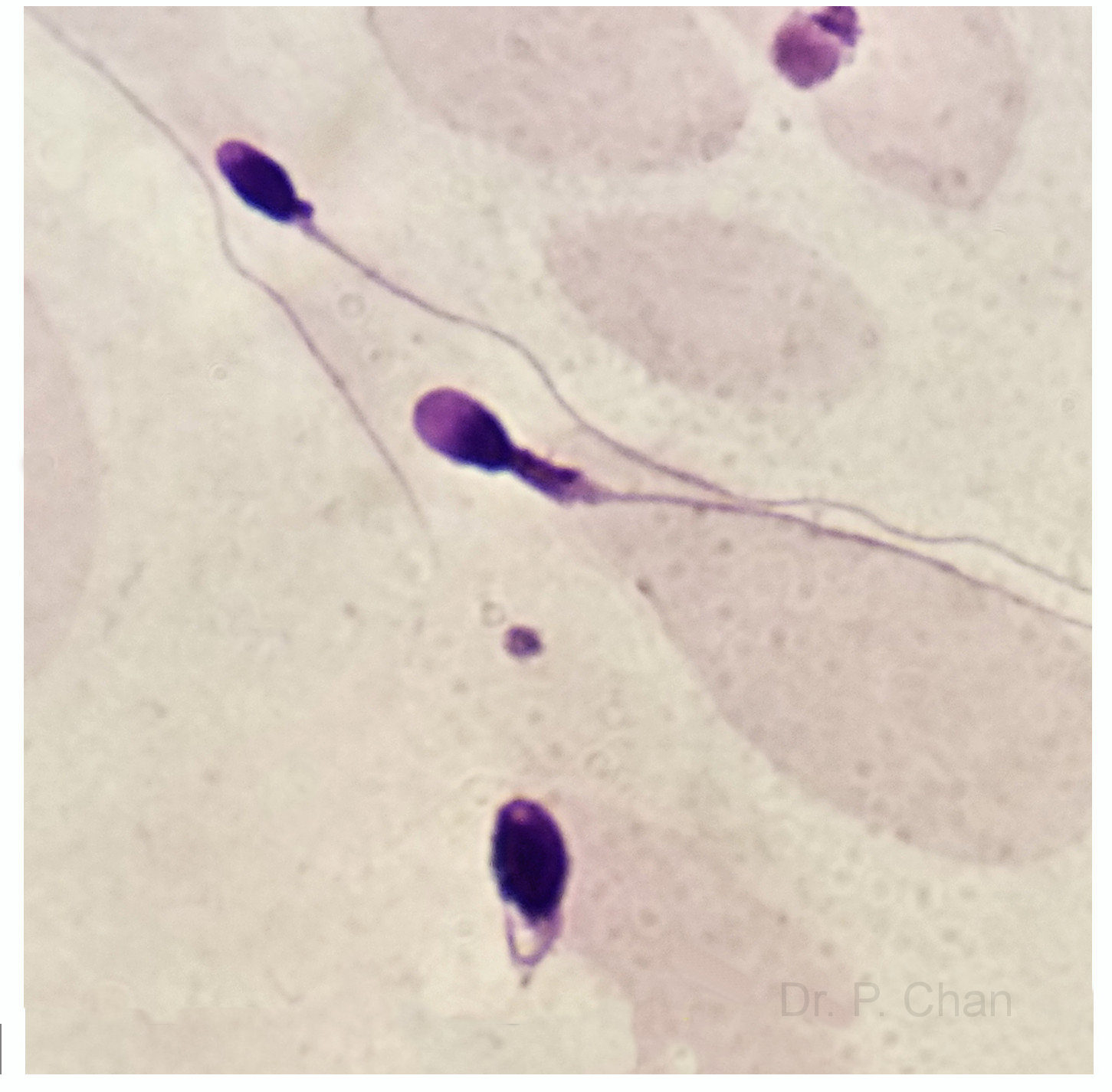 fertile and Thick sperm