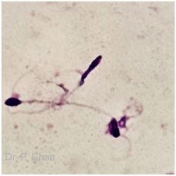 Sperm morphology | LLU Center for Fertility & IVF | Thin sperm